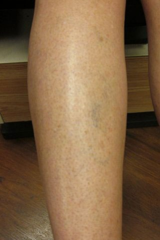 Spider Veins - Before
