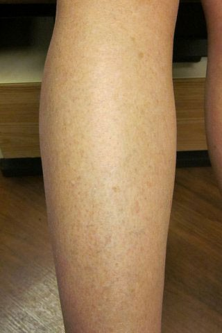 Spider Veins - After