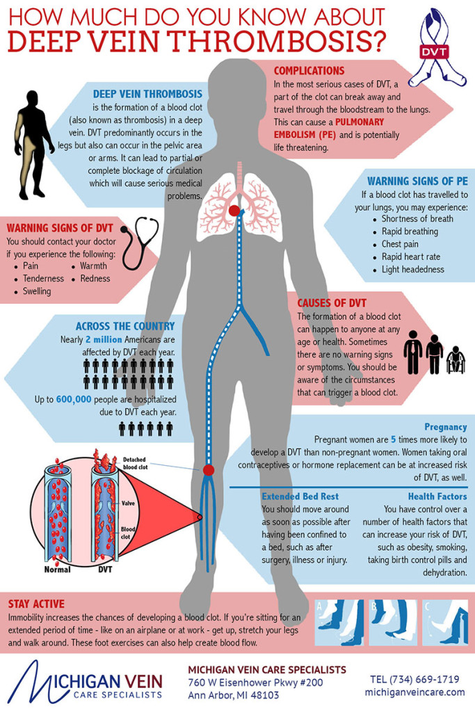 Deep Vein Thrombosis Infographic